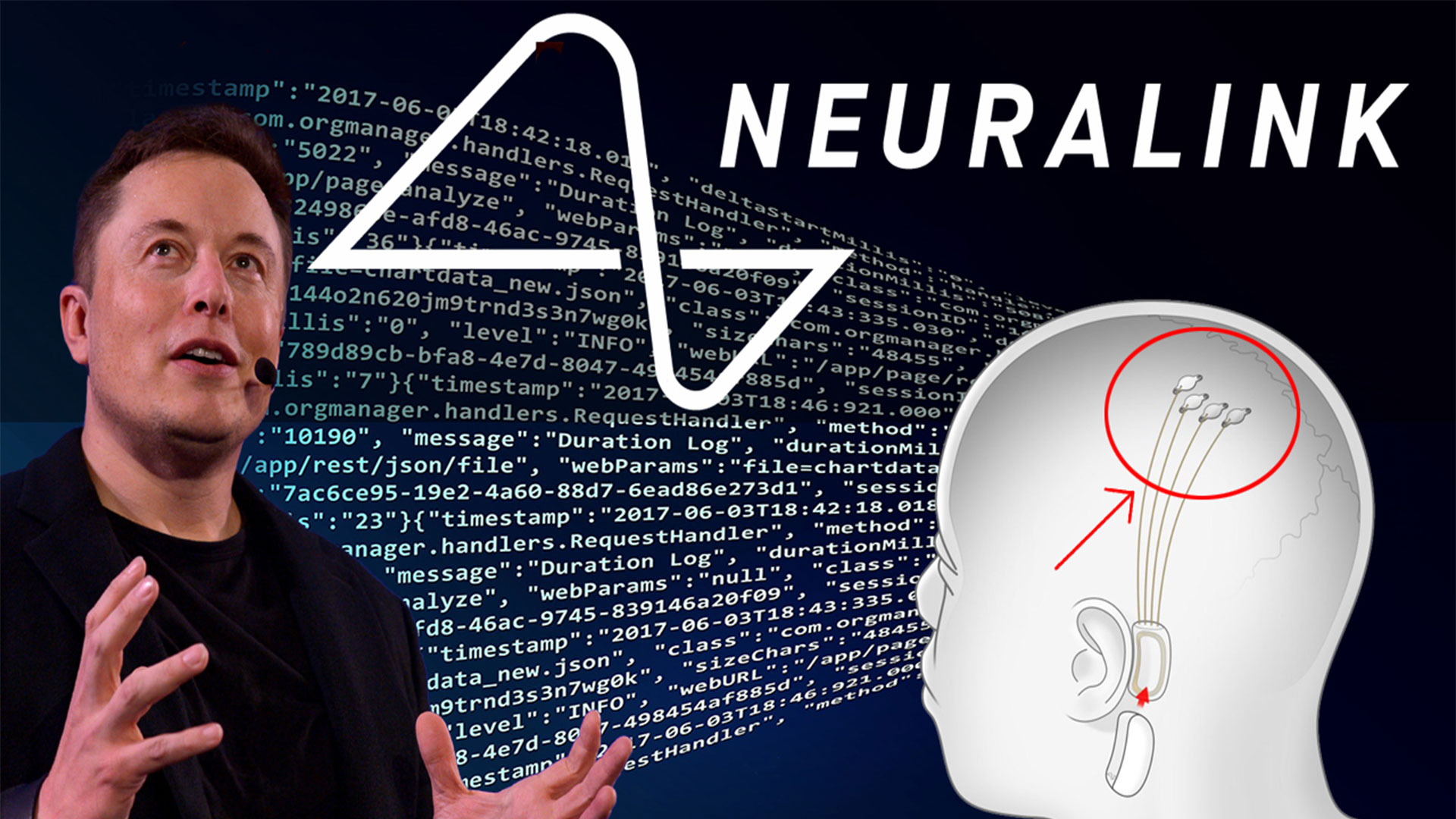 Neuralink MAJOR Sign of the Times